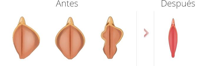 labioplastia-reduccion-labios-antes-despues