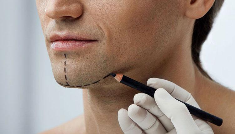 Disminución de Mentón: proporciona equilibrio y armonía al rostro