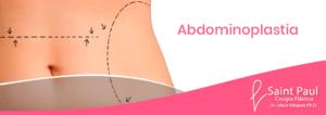 abdominoplastia-peru