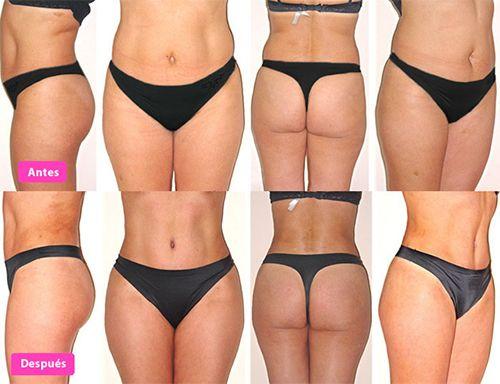 abdominoplastia antes y despues mujer