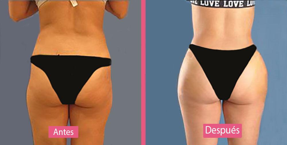 Antes y Después del Aumento de Glúteos con Implantes