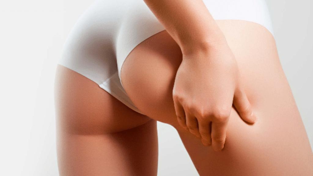 Aumento de Glúteos - Grasa vs Implantes
