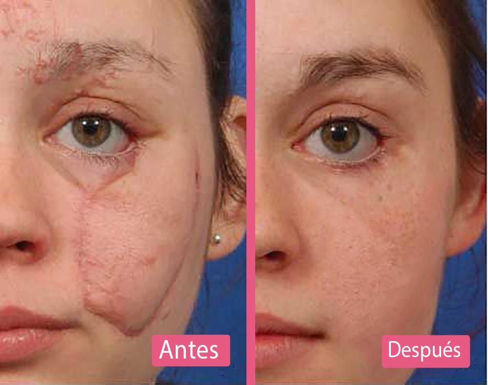 Antes y Después del Láser Para Eliminar Cicatrices
