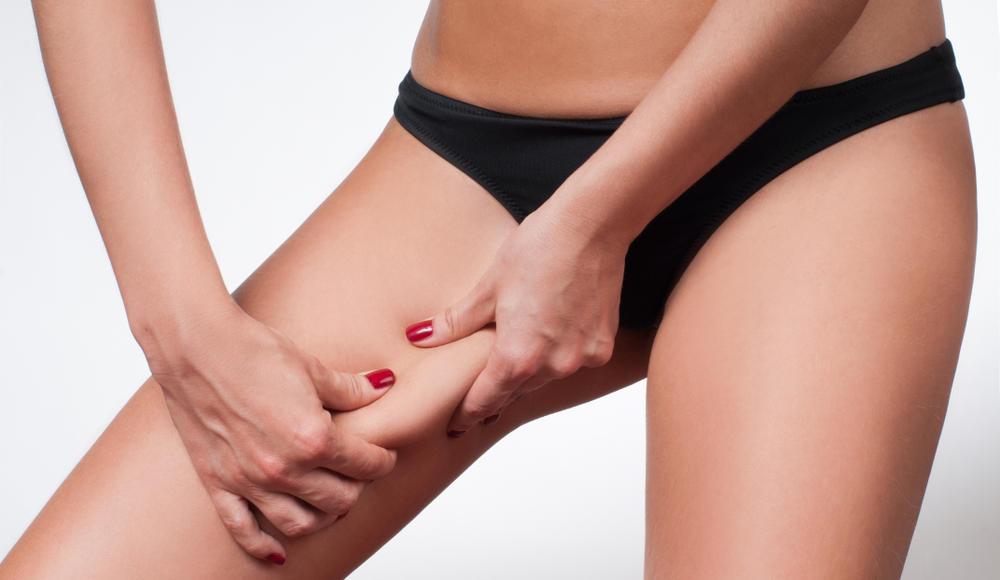 Qué es la Liposucción de Muslos