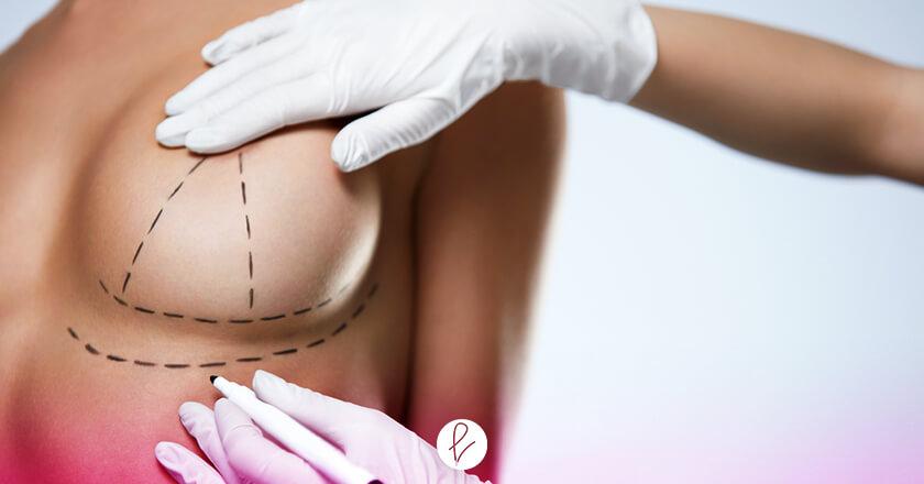 ¿Qué es una Mamoplastia?