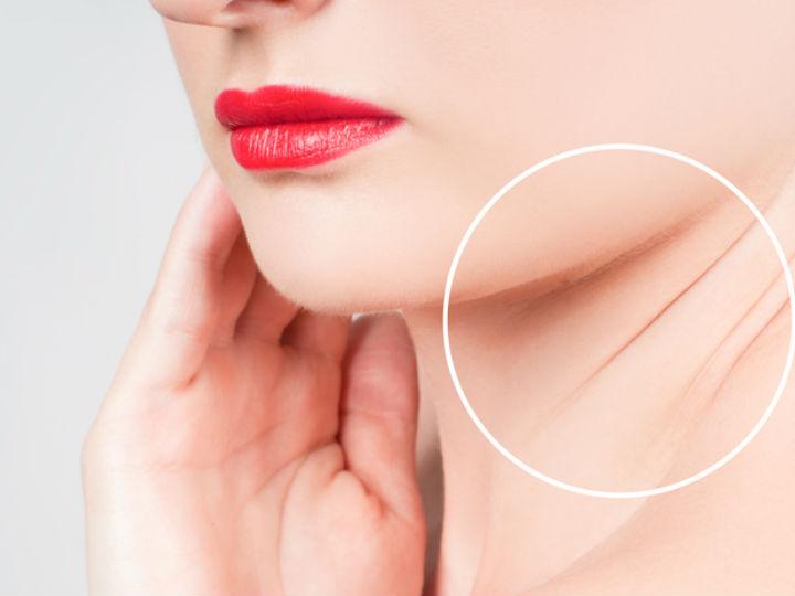 Botox en el cuerpo: Minimiza la apariencia de las bandas del cuello