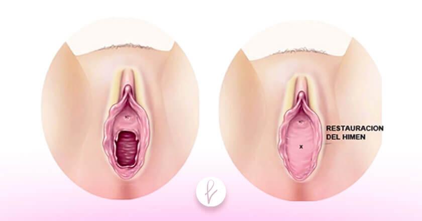 Procedimiento de una Himenoplastia