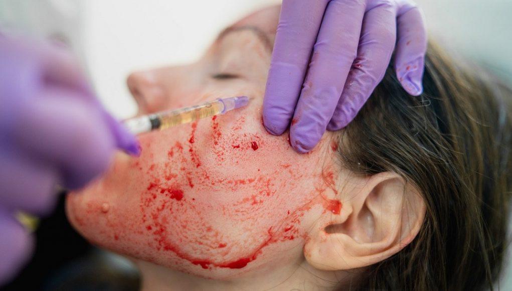 Tratamientos PRP facial