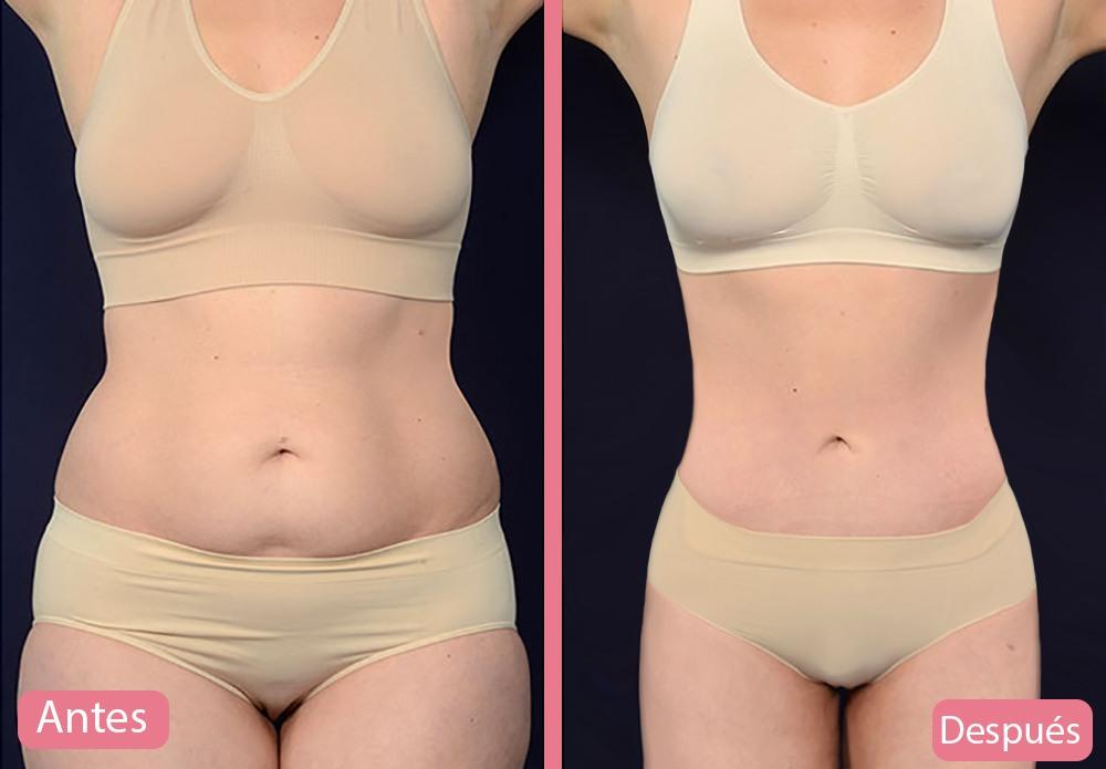 abdominoplastia en Perú antes y después