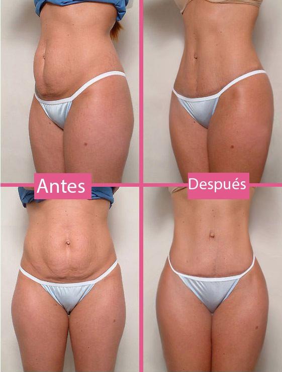 Mini abdominoplastia resultados