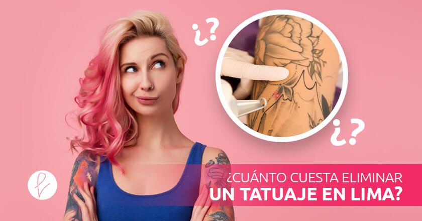 ¿Cuánto cuesta Eliminar un Tatuaje en Lima?