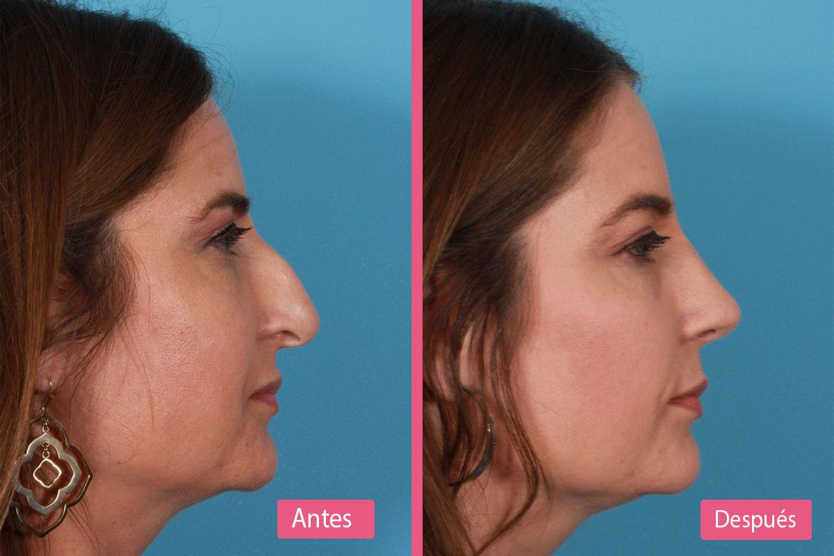 rinoplastia abierta y cerrada antes y después
