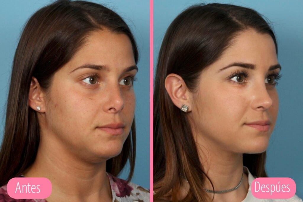 antes y despues rinoplastia secundaria