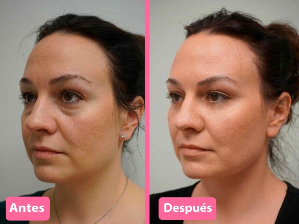 antes y después cirugía de párpados caídos