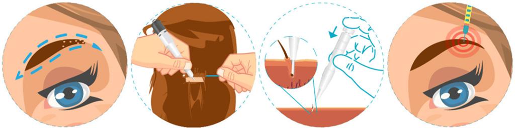 Procedimiento trasplante de cejas