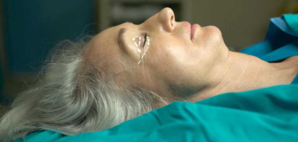 procedimiento cirugia de párpados caídos