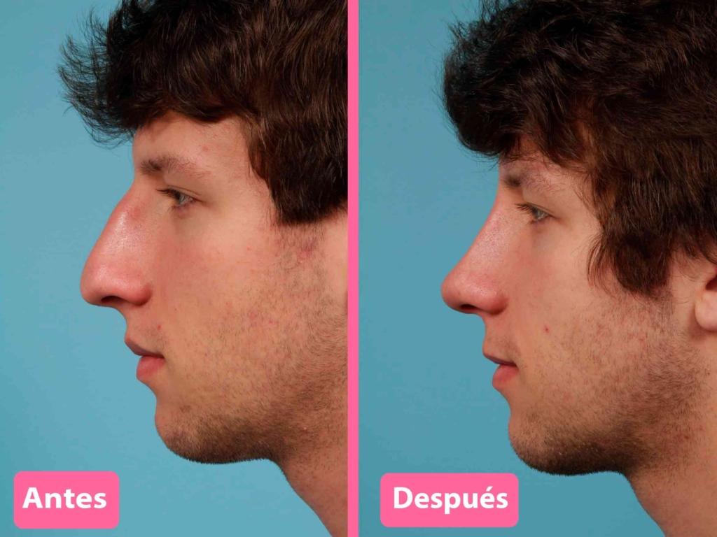 resultados rinomodelación y rinoplastia