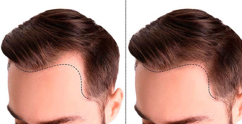 resultados implante capilar en lima