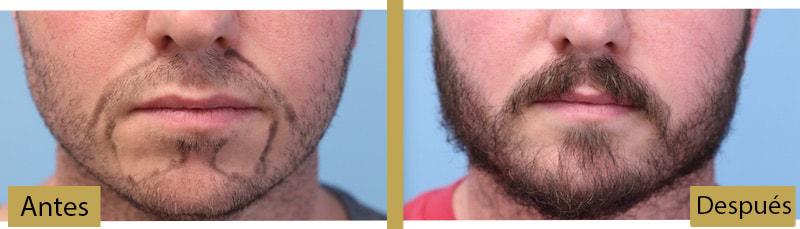 resultados del implante barba antes y después