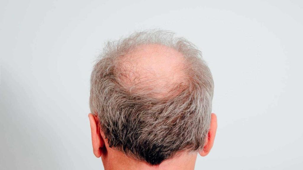 por qué ocurre la caída el cabello