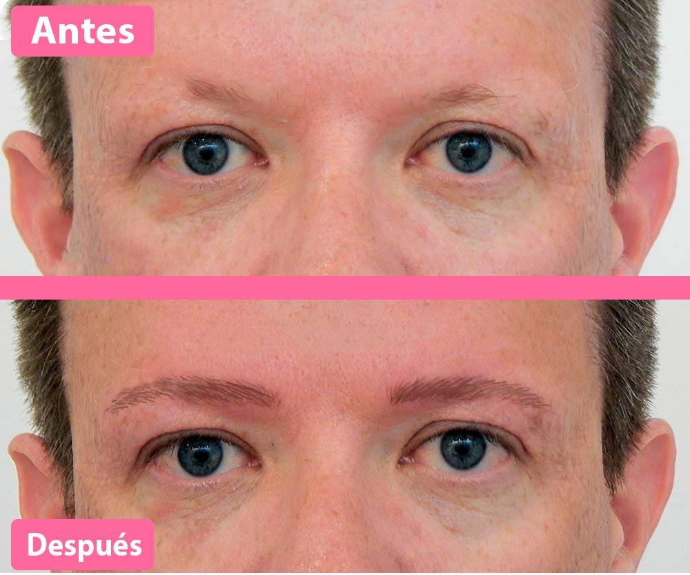 Resultados trasplante de cejas