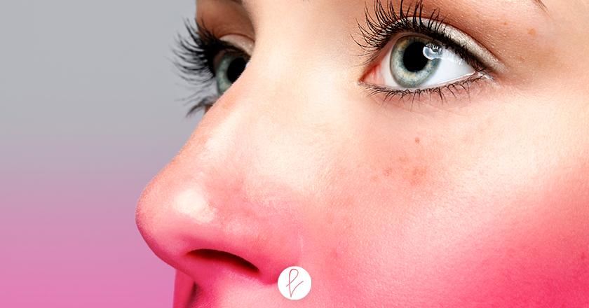 Cómo prepararse para la operación de nariz
