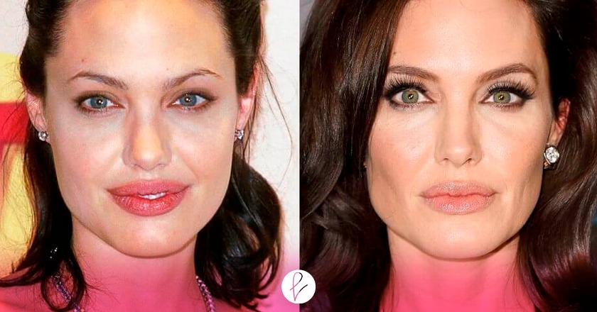 Bichectomía Angelina Jolie
