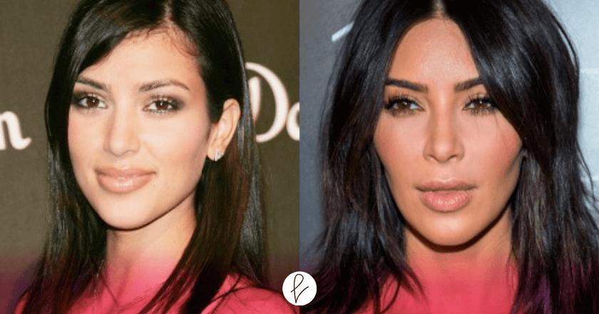 Bichectomía Kim Kardashian