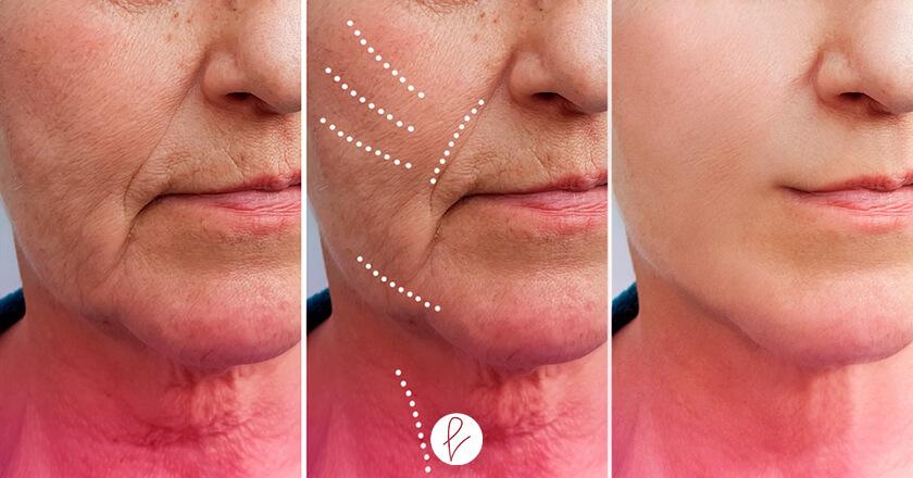 ¿Qué es el Lifting Facial?