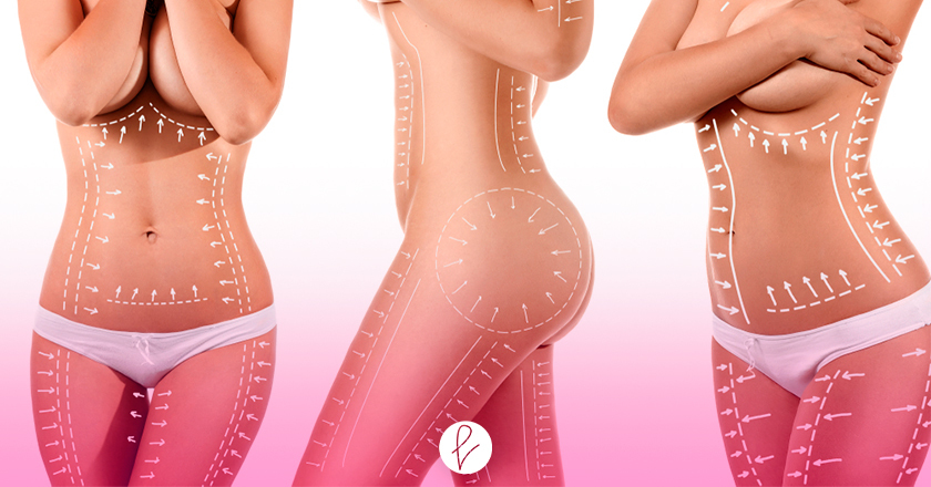 Procedimiento de las cirugías de la Lipoescultura y la Liposucción