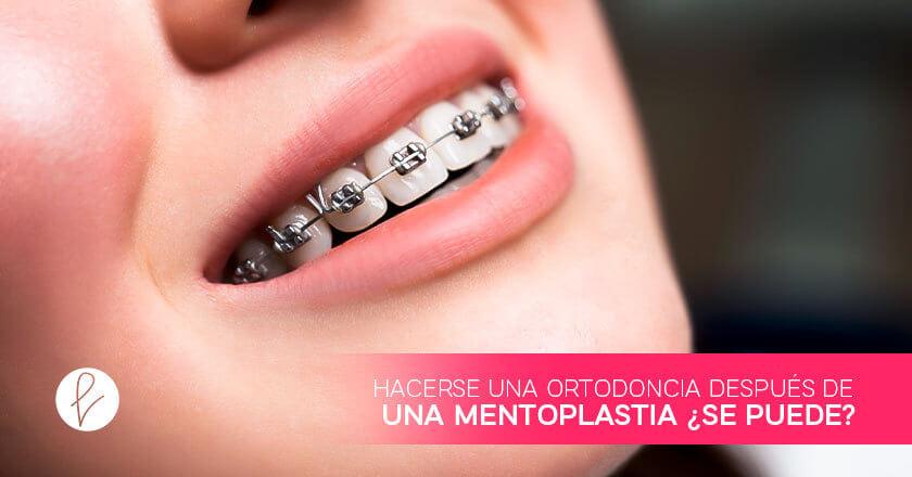 ¿Es recomendable hacerse una ortodoncia después de una Mentoplastia?