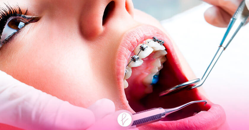 ¿Y el procedimiento de una Ortodoncia?