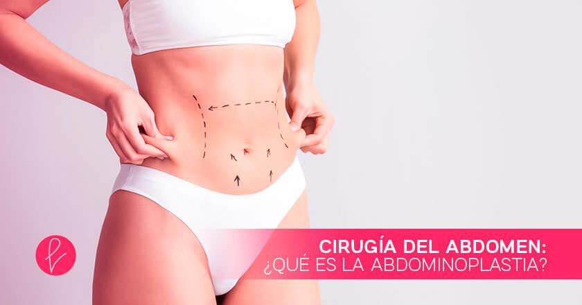 Cirugía del abdomen: ¿qué es la abdominoplastia?