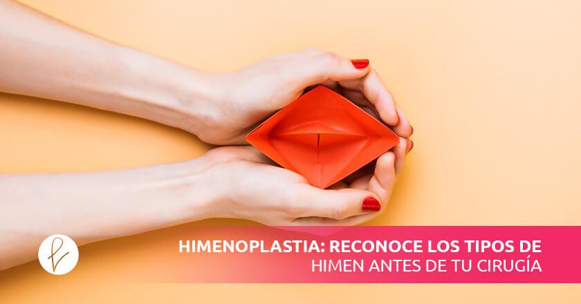 Himenoplastia: reconoce los tipos de himen antes de tu cirugía