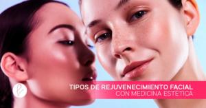 Tipos de rejuvenecimiento facial con Medicina Estética
