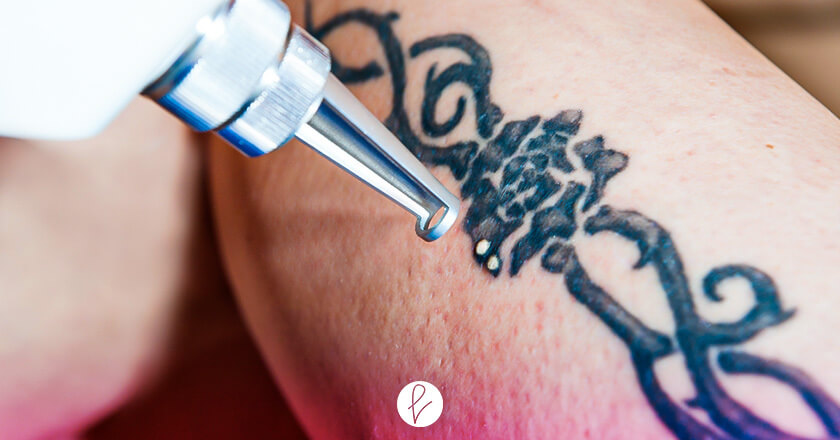 ¿Cuánto cuesta borrar tatuajes?