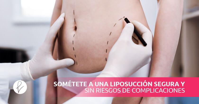 Sométete a una liposucción segura y sin riesgos de complicaciones