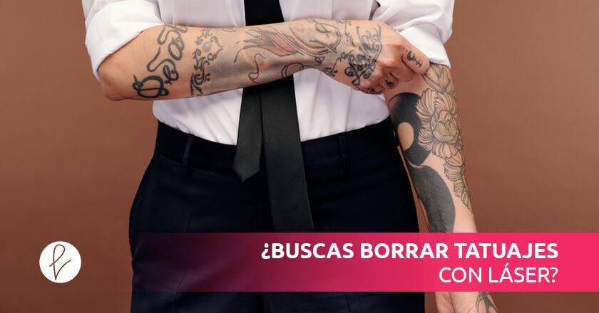 ¿Buscas borrar tatuajes con láser?