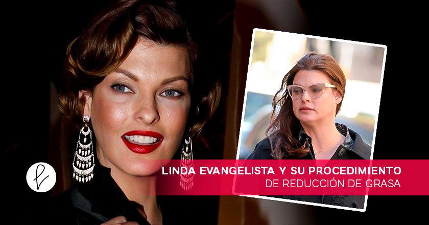 Linda Evangelista y su procedimiento de reducción de grasa
