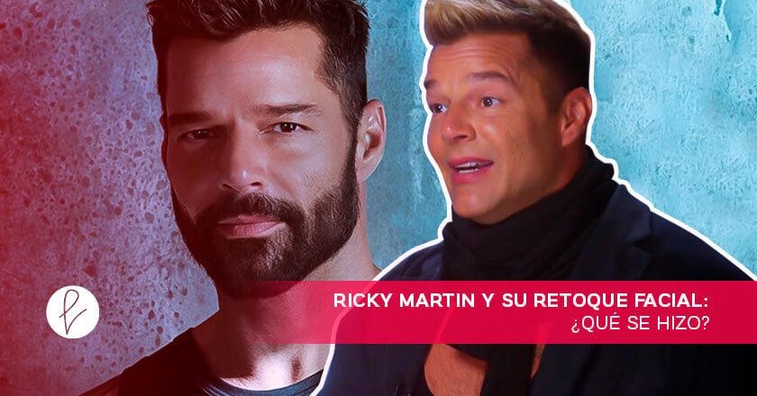 Ricky Martin y su retoque facial: ¿qué se hizo?