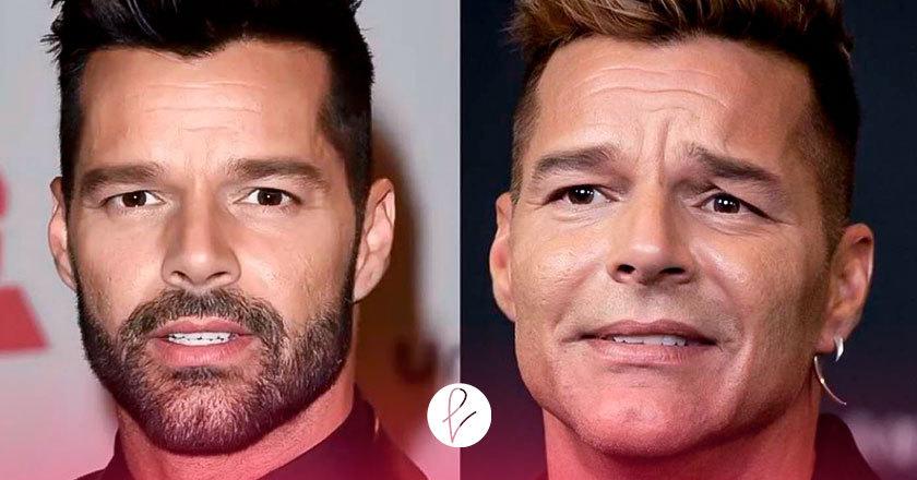 Ricky Martin y su retoque facial